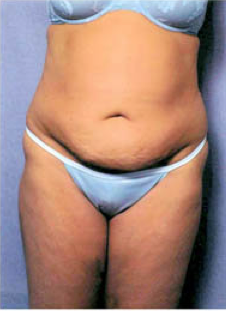 Tummy Tuck before 428194