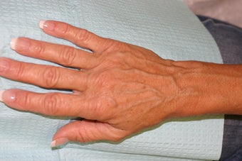 Sclerotherapy for hand veins before 140325