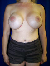 Revisonary Breast Surgery with Extra Large Implants before 130301