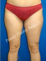 Liposuction before 632100