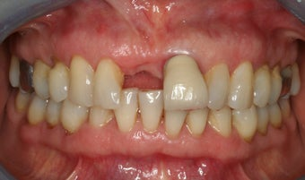 Anterior dental implant before 316683