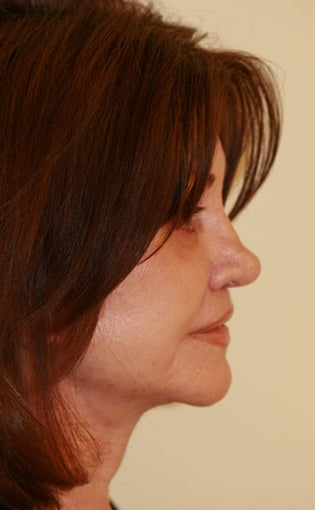 Facelift and Rhinoplasty after 216690