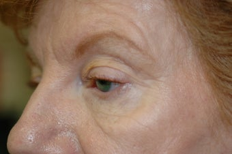 Midface Lift, upper and lower eyelid surgery 433477
