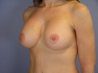 Breast Implants  after 305413