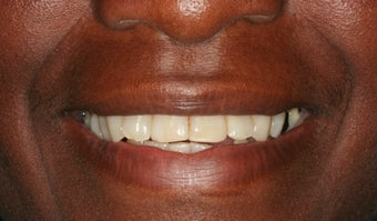 Full mouth reconstruction, smile makeover before 458449