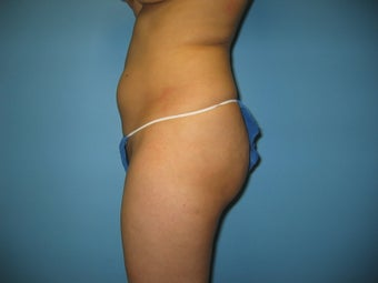 buttock augmentation (Brazilian buttock lift) 379020