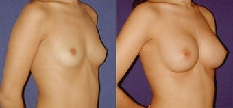Breast Augmentation before 110006