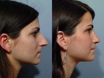 Rhinoplasty before 212566