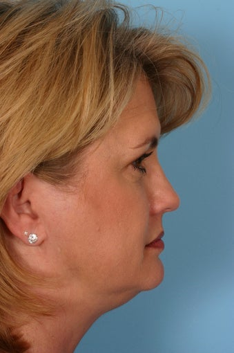 Browlift, Blepharoplasty, Lower Facelift