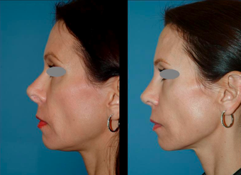 Revision Rhinoplasty (open) after 306788