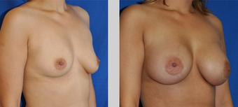Flash Recovery Breast Augmentation TM before 253887