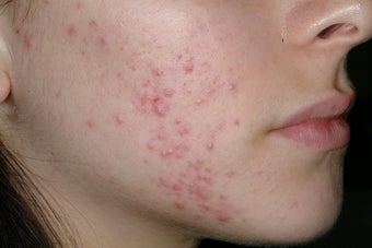 Acne and Isolaz before 95914