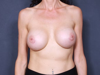 Breast Implant Revision after 461496
