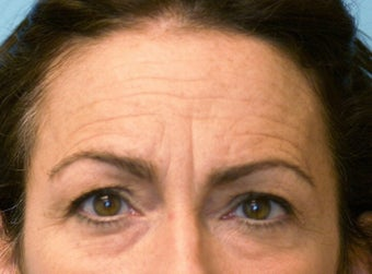 Forehead Lift before 581211