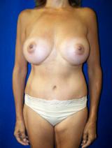 Tummy Tuck Surgery (abdominoplasty) and Augmentation after 129708