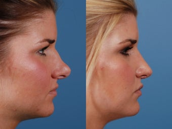 Revision rhinoplasty after 395562