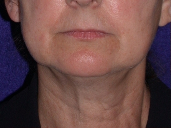 Necklift before 208445