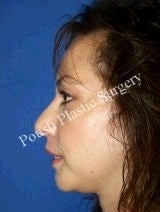 Chin Implants, Nose Surgery (Rhinoplasty) after 622588