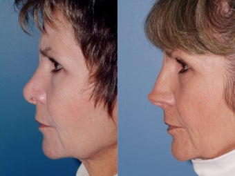 Revision rhinoplasty 334293