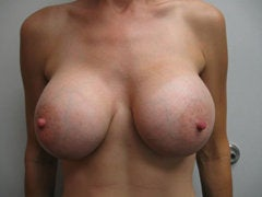 Breast Augmentation after 258597
