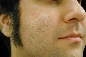 CO2 Affirm - Acne Scars after 200609
