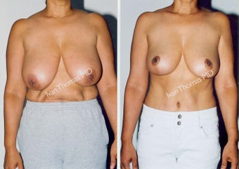 Tummy Tuck and Breast Reduction before 247326
