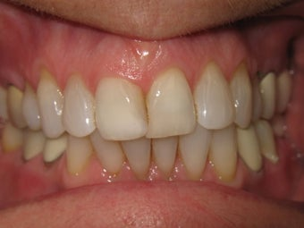 Invisalign and Porcelain veeners before 347772
