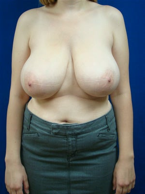 Breast Reduction Surgery before 153380