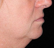 Chin Augmentation before 583776