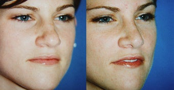 Rhinoplasty before 633431