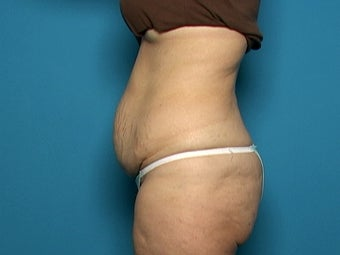Abdominoplasty before 134585
