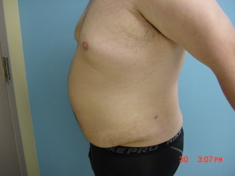 liposuction after 309948