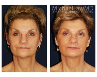 Facial Rejuvenation - Fat Transfer before 395457