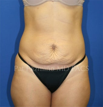 Tummy tuck before 199311