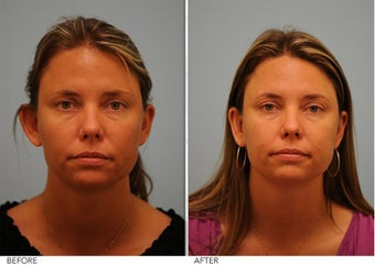 Otoplasty before 306851