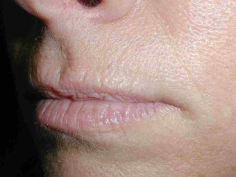 Restylane in Upper Lip before 108822