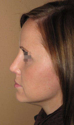 Rhinoplasty after 270687