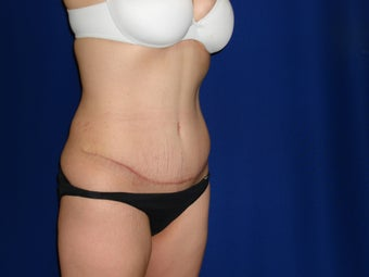 Abdominoplasty with liposuction of flanks after 300372