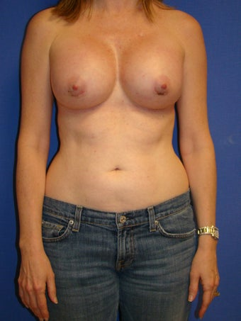 Breast Augmentation after 76684