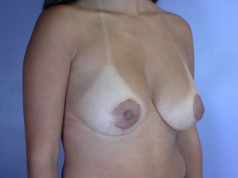 Breast Lift / Breast Augmentation after 291110