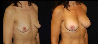 Breast Implants after 150831