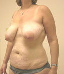 Breast Reduction and Tummy Tuck before 630986