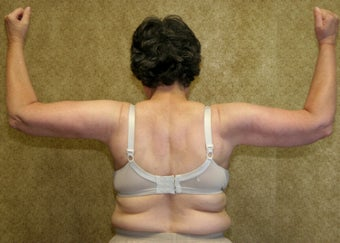 Brachioplasty or arm tuck in los angeles after 583674