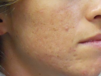 Acne Scars with Laser Resurfacing after 272021