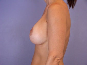 Breast Revision Surgery  after 306992