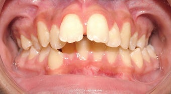 Teen Orthodontic Treatment (case #1DC) before 224713
