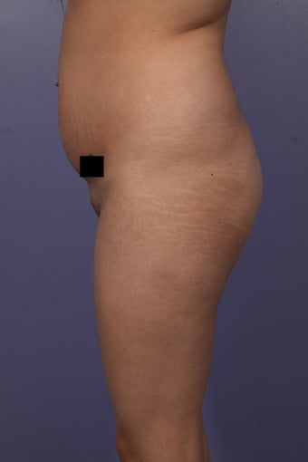 Buttock augmentation before 585019