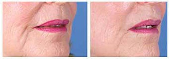 Restylane for nasolabial folds and marionette lines before 6267