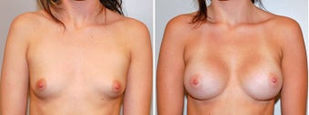 Breast augmentation before 330264