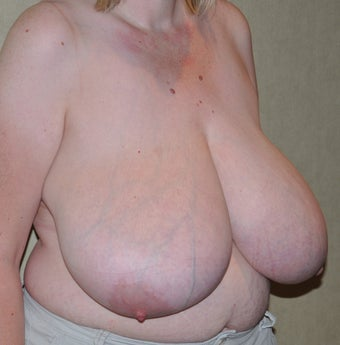 Breast Reduction 521074